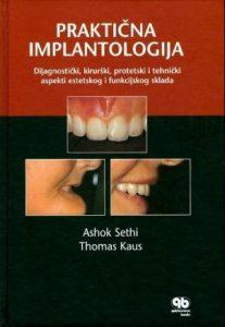 Praktična implantologija