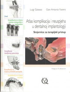 Atlas komplikacija i neuspjeha u dentalnoj implantologiji - Smjernice za terapijski pristup